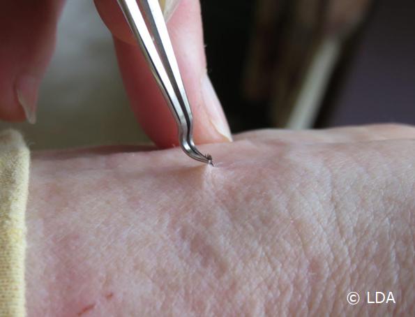 Tick removal tweezer